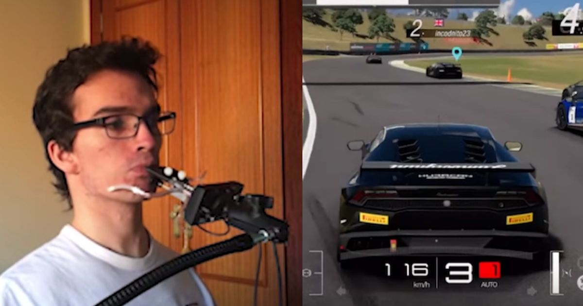 This Tetraplegic Gamer Plays GT Sport By Using His Mouth